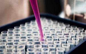 Amniotic Derived Stem Cells