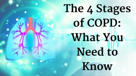 4 Stages of COPD