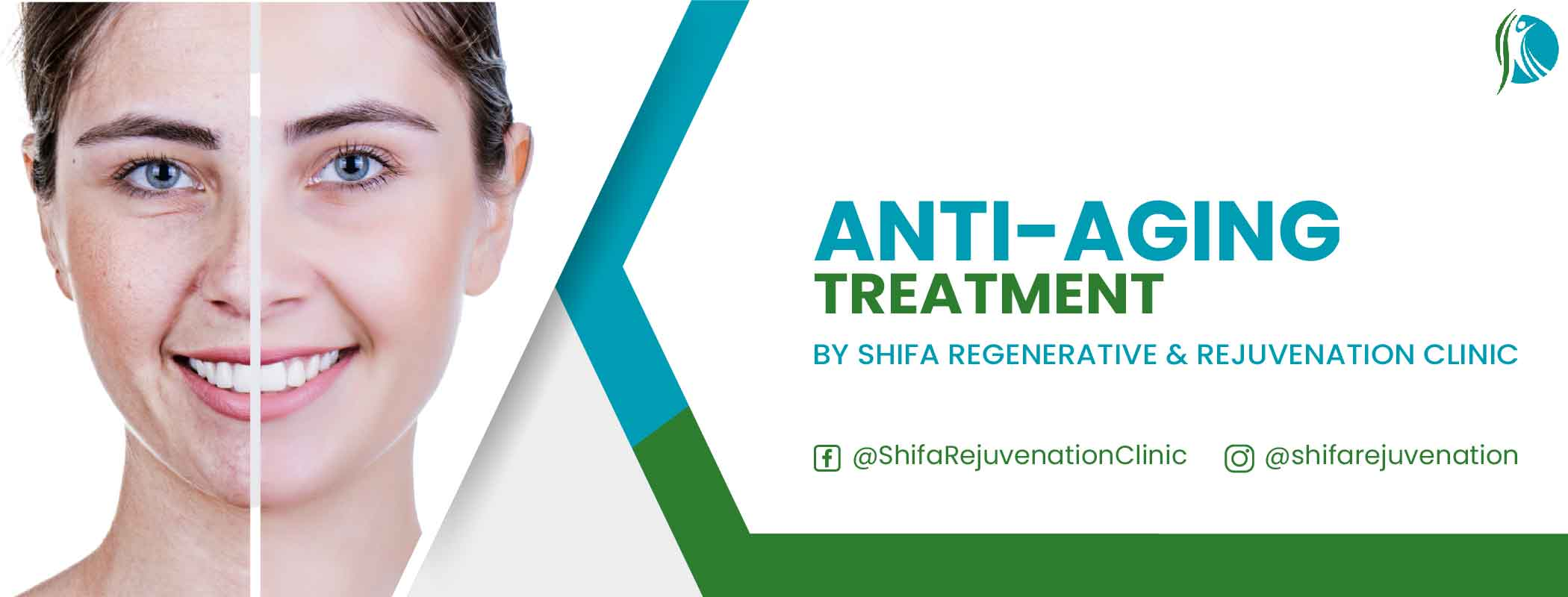 Anti Aging Treatment through Stem Cell Therapy at Shifa