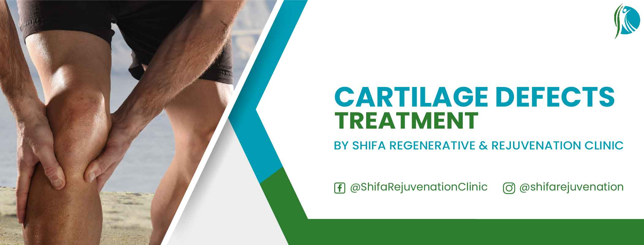 Cartilage Defects Treatment through Stem Cell Therapy at Shifa Clinic