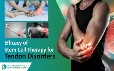 Efficacy of Stem Cell Therapy for Tendon Disorders